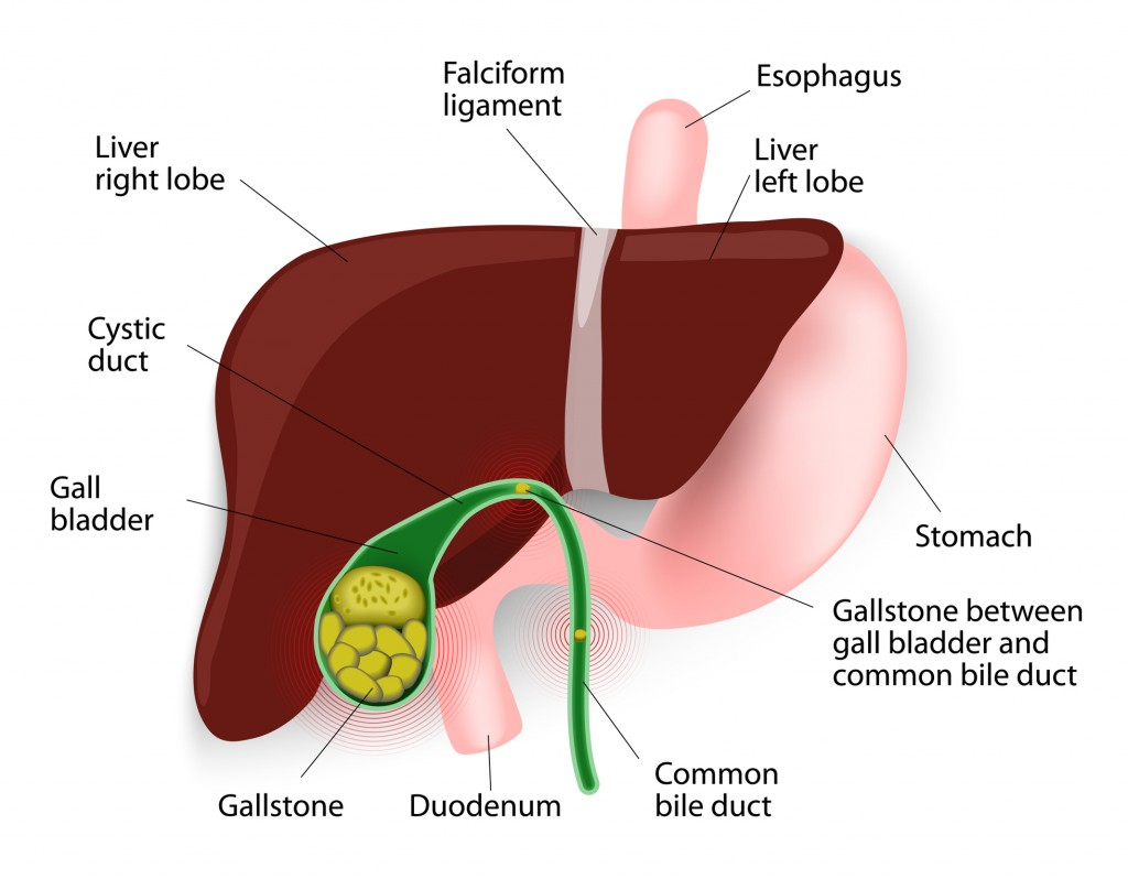 Gall Stones & Gall Bladder Surgery - Victorian specialist surgery centre