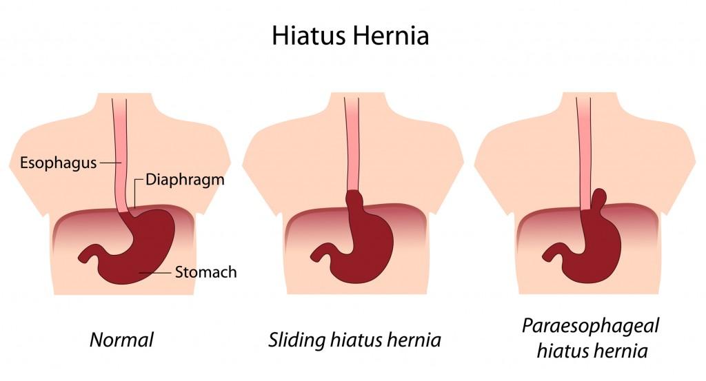 Hiatus Hernia-1