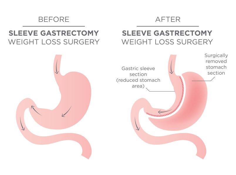 Stomach Staple Bariatric Surgery Resulting in 1/4 of the Stomach Removed.